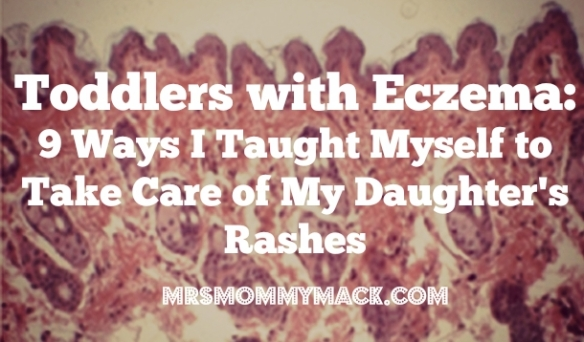 Toddlers with Eczema: 9 Ways I Taught Myself to Take Care of My Daughter's Rashes | mrsmommymack.com